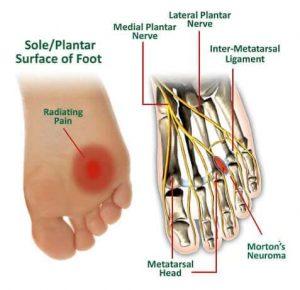 mortons neuroma footcare treatment