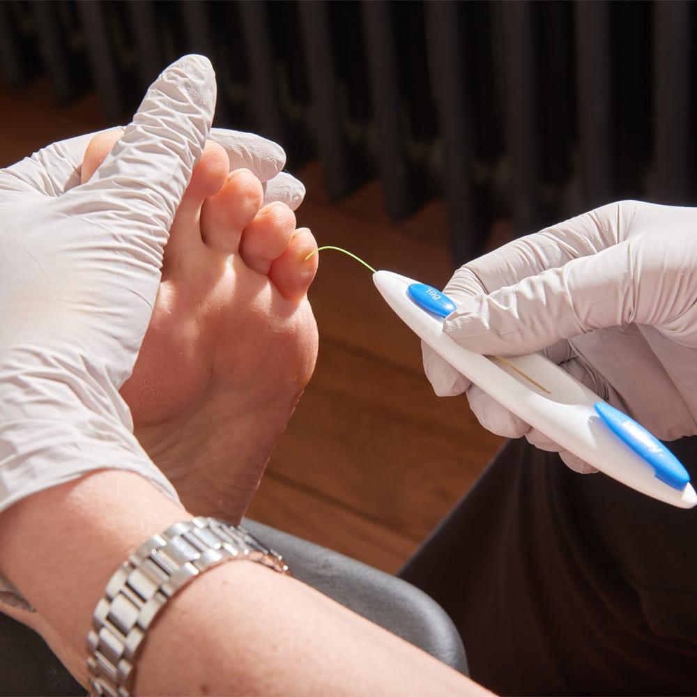 healthy feet panpa treatment